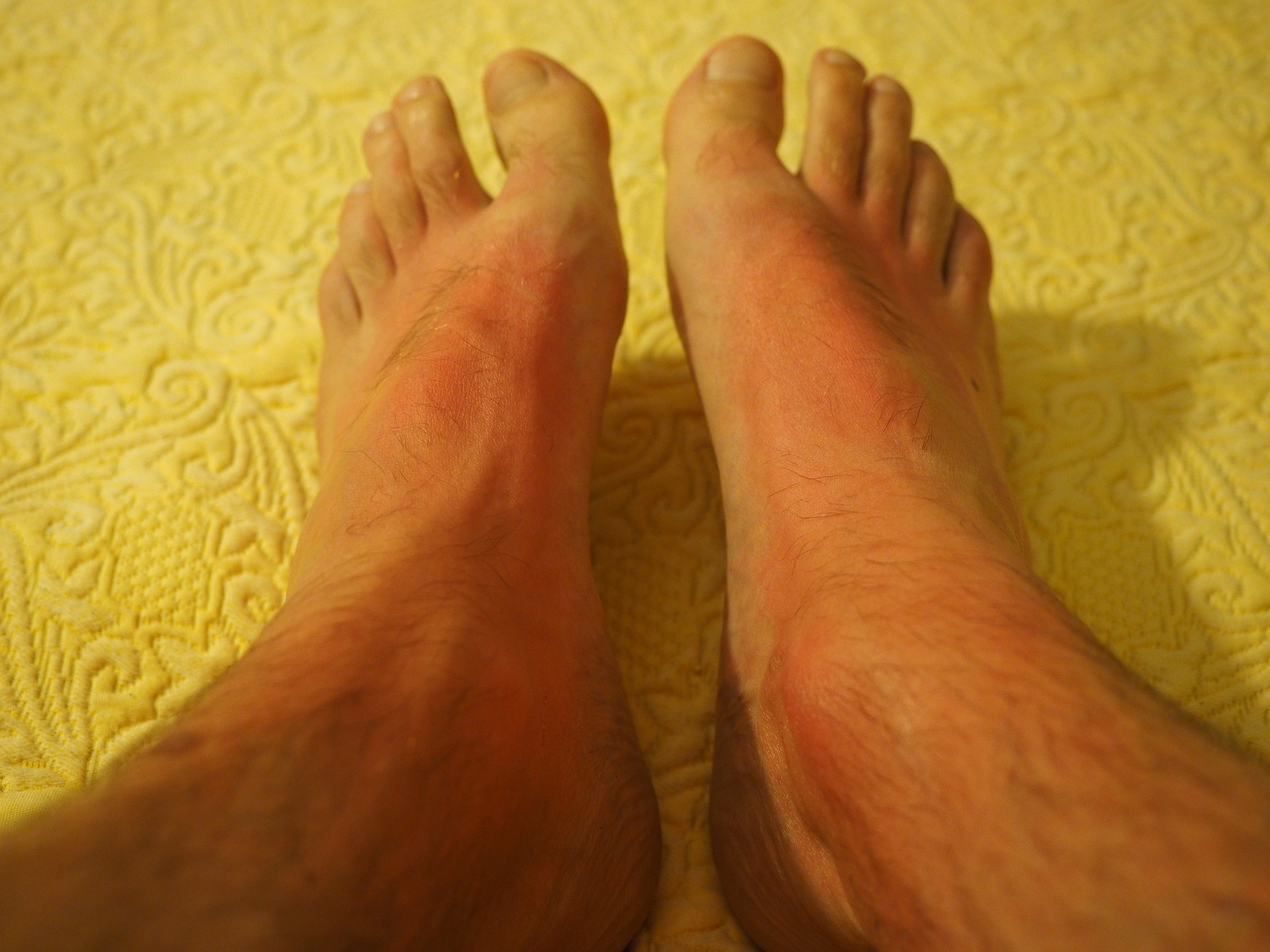 sunburned feet